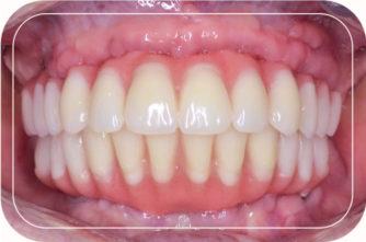 Пациент №1. Протезирование верхней и нижней челюстей  на 4 имплантах по протоколу All-on-4