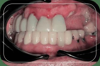 Пациент №1. Протезирование на 6 имплантах по протоколу All-on-6