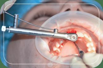 Пациент №1. Удаление зуба с одномоментной имплантацией