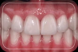 Пациент №3. Реставрация двух передних зубов винирами