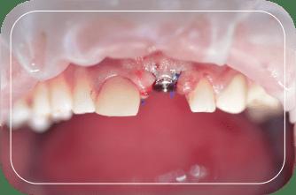 Пациент №2. Удаление зуба с одномоментной имплантацией